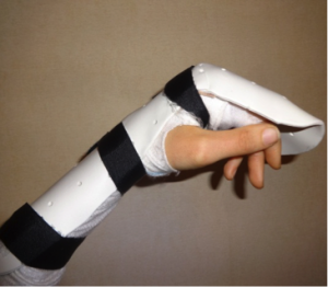 Flexor Tendon Splint